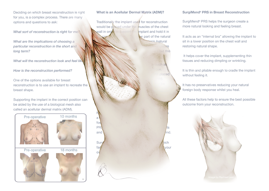 Medical Illustration for Q Medical technologies - Working with Medical experts to understand procedures to produce illustration that is sensitive and accurate.