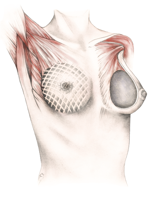 Pre-pectoral illustration for patient information and marketing